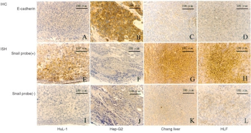 IHC staining of endogenous E-cad protein expression in the tumour sections induced by HuL-1 (A), Hep-G2 (B), Changliver (C) and HLF (D) cells (upper panels). Only Hep-G2 tumours clearly showed membranous expression of E-cad. ISH with biotinylated Snail probe detected positive brown staining in the cytoplasm of HuL-1 (E), Changliver (G) and HLF (H) tumour sections, representative of endogenous Snail mRNA expression, but not in Hep-G2 tumours (F) at all (middle panels). Lower panels (I, J, K and L) represented negative controls of each respective section for ISH.