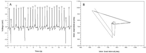 Second typical Poincaré plot from a non-AFib ECG data. (a) The 20 second amount of ECG data from 'n04', CinC 2001. There are PVCs. The inter-beat intervals change around the PVCs. (b) The points of this Poincaré plot revolve clockwise and make a wedge-shaped diagram. This is because the inter-beat intervals changed around the PVCs.