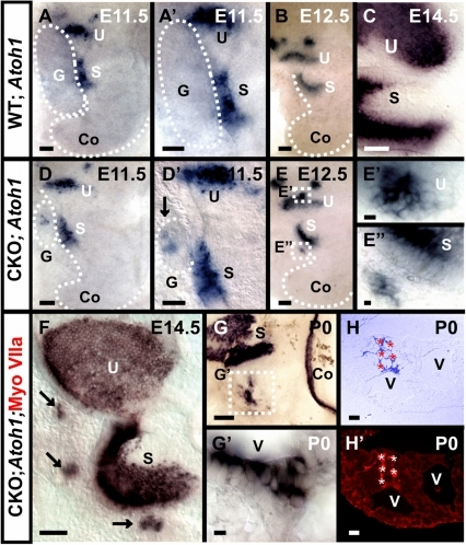 Persistent Atoh1 expression in remaining ganglia relates to transformation of ganglionic cells into hair cells in Neurod1 mutant.In situ hybridization of Atoh1 shows a faint and transient expression at E11.5 in some vestibular ganglion cells in wild-type mice (A, A'). This expression is more profound and continues in the ganglia of Neurod1 CKO mice (D, D'). In later stages, Atoh1 in situ signal appears in a cluster of cells in CKO mutants near the utricle and saccule (E–E', F, G–G'). Some of the Atoh1 positive cells are aligned along the vesicular lumen similar to the Myo VIIa positive cells shown in Fig. 1 (G). To investigate co-localization, we labeled Atoh1 in situ reacted ears with anti-Myo VIIa antibody, embedded in plastic and sectioned. The sections reveal co-localization of Myo VIIa with Atoh1 in these cells (H,H') thereby providing strong evidence that these cells are hair cells. S, saccule; U, utricle; G, ganglia; V, intraganglionic vesicle. Bar indicates 100 µm except E, E' and 10 µm in E, E'.