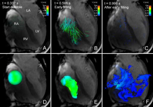 Particle tracing and Volume Tracking visualizations of right ventricular filling flow. Particle tracing (panels A-C) and Volume Tracking (panels D-F) visualizations of RV filling in volunteer 7. See Additional File 5: VT-RV.mpg for an animated version. In each image, an anatomical 4-chamber cine image is shown. The 4-chamber image is transparent to show flow behind the plane. The scene has been rotated in comparison to Figures 1, 2 and 4, to better show the visualizations. Due to the rotation, the RV is in the foreground, with the LV behind. Time is counted from the start of systole. Panels A-C show particle tracing. In panel A, at the start of diastole, a collection of particles has been placed in the right atrium. In panel B, during early filling, the particle traces move in a vortex pattern from the atrium into the ventricle. In panel C, at end-diastole, the particles have slowed down and spread in the right ventricle. Panels D-F show a Volume Tracking visualization corresponding to the particle tracing in panels A-C. Panel D, at the start of diastole, shows a spherical volume of blood in the right atrium. In Panel E, during early filling, the blood volume has deformed and flowed into the right ventricle. In Panel F, at end-diastole, the volume has been deformed further and has spread in the right ventricle. Comparing panels B and E, the vortex flow pattern is more apparent in the particle trace visualization in panel B. Comparing panels C and F, the Volume Tracking visualization in panel F shows how blood has spread in a complex pattern in the right ventricle. This is not apparent in the particle tracing visualization in panel C. LV = left ventricle, RV = right ventricle, LA = left atrium, RA = right atrium, MV = mitral valve, color = velocity from 0 (blue) to 1 m/s (red).