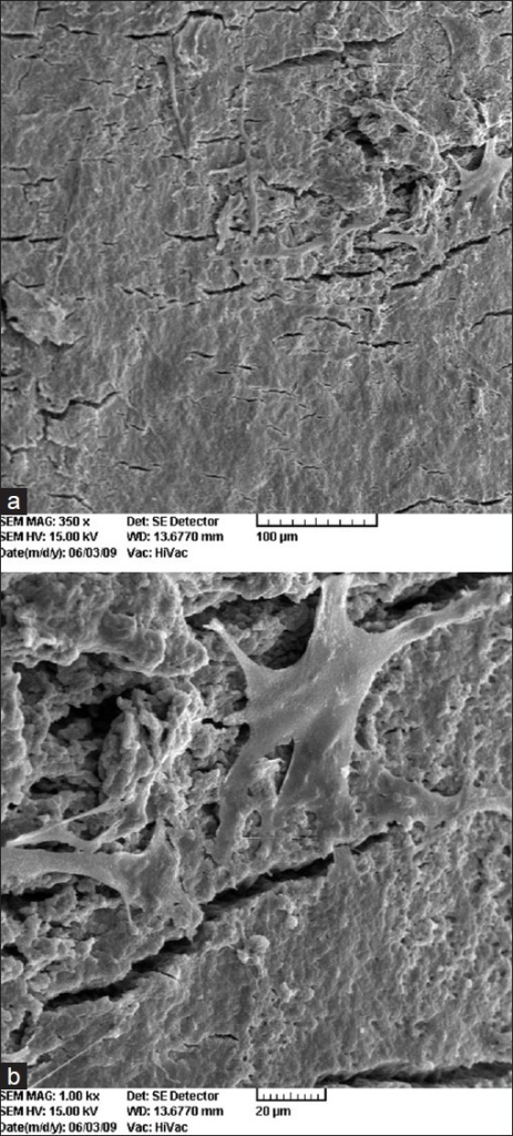 Root surface treated with saline after root surface debridement. (a) (original magnification ×350.) An example of one of the regions randomly selected by use of the template. (b) Selected region from (a) (original magnification ×1000). Viable, flat, well-attached cells with elongated processes attached to root surface covered by a heavy smear layer can be seen