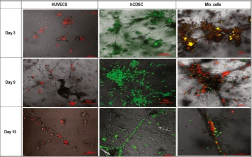Live imaging of hCDSC (green) and HUVECS (red) co-culture in fibrin-matrigel construct after 3, 9 and 15 days. The overlapping of hCDSC and HUVECS were marked by yellow colour.