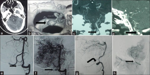 (a) NCCT Head showing SAH and IVH, (b) 3D CT angiography seen from anterior aspect and above showing dilated vascular structure (shown by arrow) near posterior CVJ, (c and d) CT angiography coronal and sagittal reconstruction, showing dilated vascular structure (shown by arrow) near CVJ, (e) DSA in arterial phase does not show any aneurysm, (f) DSA in early venous and late arterial phase showing venous aneurysmal dialatation (arrow), (g and h) postoperative DSA showing nonfilling of aneurysm both in the arterial phase and (g) venous phase, (h) Aneurysm clip is seen