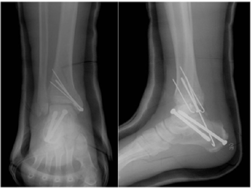 Postoperative radiographs after reimplantation of the t | Open-i