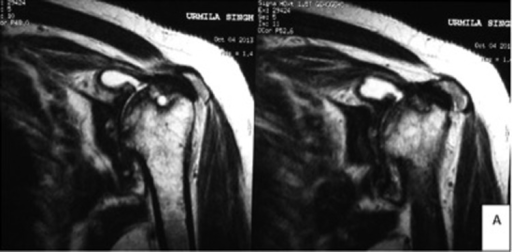 MRI of the left shoulder joint confirming severe arthritic changes, including synovial thickening and destruction of the shape of the humeral head. The rotator cuff was essentially normal with only slight degenerative changes.