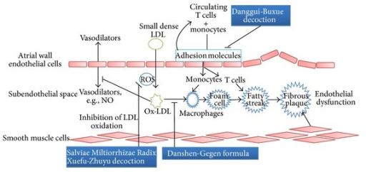 The endothelial dysfunction development is summarized and potential therapeutic interventions in the pathway using TCMs are indicated.