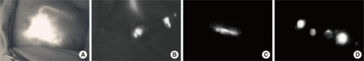 Near-infrared fluorescence imaging during sentinel lymph node (SLN) mapping. (A) The periareolar injection site and afferent lymphatic duct are clearly observed. (B) A skin incision made at the point where the fluorescence disappeared, and a strong fluorescence is seen clearly after incision. (C) Lymphatic flow in the axilla is identified. (D) A resected SLN with fluorescence imaging reconfirmed by photodynamic eye.