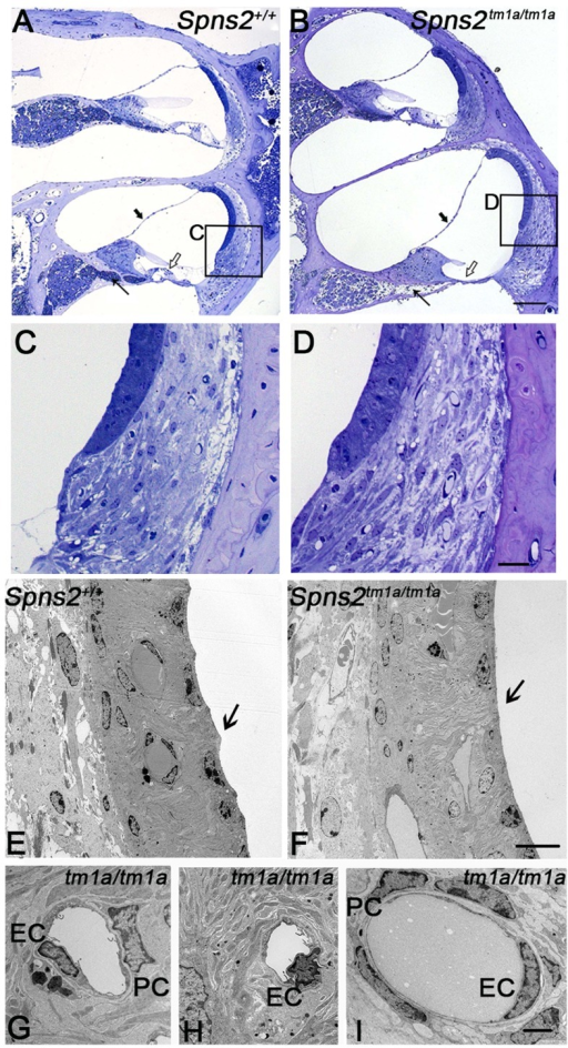 Pathological changes in stria vascularis and normal position of Reissner's membrane.A,B In semi-thin sections (P28), the position of Reissner's membrane is not changed (bold arrow). Hair cells and supporting cells of the most basal turn have degenerated (open arrow). The neural dendrites in Rosenthal's canal appeared reduced (arrow). Scale bar: 100 µm. C and D are expanded views of the areas framed in A and B and display similar morphology of fibrocytes in mutants and controls. Scale bar 20 µm. By transmission electron microscopy (P28, E–I), the normal scallop-shaped (bold arrow) luminal boundary of marginal cells in control mice (E) was not found in the Spns2tm1a/tm1a mice (F). Abnormalities were seen in nuclei of endothelial cells (EC) and pericytes (PC) in strial capillaries of Spns2tm1a/tm1a mice (G,H), which were not seen in the capillaries of spiral ligament (I) and control strial capillaries (E). Scale bars: 10 µm in E,F, 2 µm in G–I.