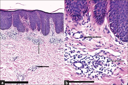 (a and b) Atopic dermatitis showing acanthosis [black line] and aggregates of mononuclear cells mainly lymphocytes in the upper dermis [white arrow] mainly perivascular [black arrow] (H and E, ×100 and ×400, scale bar 10 μm)
