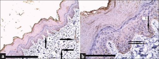 (a and b) Atopic dermatitis showing mild (+1) expression for cathepsin L mainly in the lower epidermis [arrow 1], and inflammatory cells (lymphocytes, fibroblasts) [arrows] and endothelial cells in the dermis [arrow 2] (immunoperioxidase for cathepsin L ×100 and ×400, scale bar 10 μm)