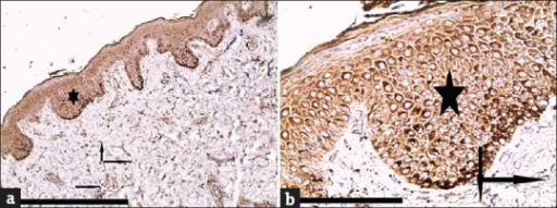 (a and b) Atopic dermatitis showing severe (+3) expression for cathepsin L mainly in the epidermis [star], and in the inflammatory cells (lymphocytes, fibroblasts) [arrows] and endothelial cells in the dermis [arrow] (immunoperioxidase for cathepsin L ×100 and ×400, scale bar 10 μm)