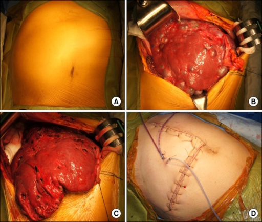 Operative findings of the patient undergoing open fenestration surgery. Enlarged liver was bulged out of the abdomen (A); There were numerous liver cysts, but the majority of liver parenchyma was preserved (B); Fenestration of the liver cyst led to moderate reduction of the whole liver volume (C); Bulging mass in the abdomen disappeared at the time of abdominal wall closure (D).