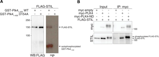 STIL is a phosphorylation target of PLK4 and PLK4-ND.(A) FLAG-STIL is phosphorylated by GST-PLK41–430 in vitro. HEK293T cells were transfected with FLAG-STIL for 48 hr. After cell lysis, FLAG-STIL was purified using anti-FLAG antibodies and subjected to an in vitro kinase assay with recombinant GST-PLK41–430 or, as a control, with a kinase-inactive version of GST-PLK41–430 (D154A). On the left, the Western blot probed with anti-FLAG antibody shows the amounts of FLAG-STIL used for the reactions. The autoradiograph (right side) shows the phosphorylation of FLAG-STIL by GST-PLK41–430 (upper band) as well as the autophosphorylation of GST-PLK41–430 (lower band). (B) HEK293T cells were transfected with the indicated plasmids and cell extracts were subjected to anti-myc co-immunoprecipitations followed by Western blot analysis. PLK4-ND—the non-degradable PLK4 mutant used throughout this study (S285A and T289A [Guderian et al., 2010])—exhibits enhanced stabilization and thus facilitates visualization of STIL binding (higher amounts of FLAG-STIL were detected in the precipitate of myc-PLK4-ND compared to wild-type myc-PLK4). Note the upshift of the STIL band upon co-expression with PLK4-ND, indicating that FLAG-STIL is phosphorylated by myc-PLK4-ND.DOI:http://dx.doi.org/10.7554/eLife.07888.005