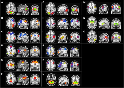 Group level independent component maps. (A) Lingual gyrus, (B) left frontal parietal network, (C) Salience network, (D) default mode network, (E) motor network, (F) posterior default mode network, (G) higher visual cortex, (H) Dorsal attention network, (I) Inferior frontal gyrus, (J) Fronta-parietal network, (K) Insular network, (L) cerebellum network, (M) pre-central gyrus, (N) basal ganglia, (O) temporal gyrus network.