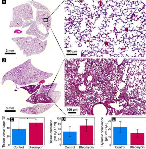 Histological slice (and a magnified section) of a control lung (A) and a lung treated with bleomycin (B).The quantified lung tissue percentage for all the animals in the control and the bleomycin groups is presented in (C). (D,E) reveal the tissue elastance and dynamic compliance for the two animal groups obtained from the pulmonary function tests.
