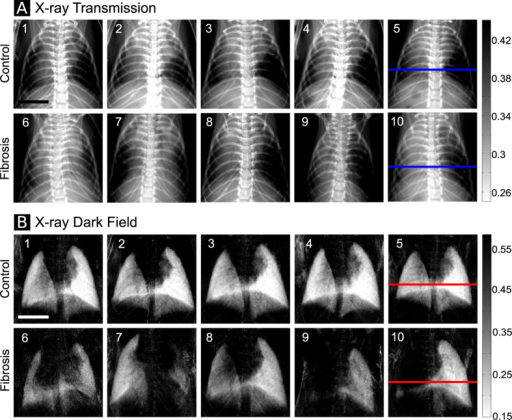 (A) Conventional x-ray transmission radiograms of five control mice (animals 1–5, top row) and five mice with pulmonary fibrosis (animals 6–10, bottom row). (B) X-ray dark-field radiograms of the same animals. The scale bar corresponds to 5 mm.