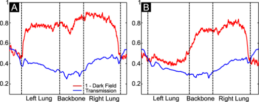 Transmission (blue) and dark-field (red) line profiles for a healthy (A) and fibrotic mouse (B).The position of the analyzed line is shown on the chosen radiographies in Fig. 2, mice 5 and 10.