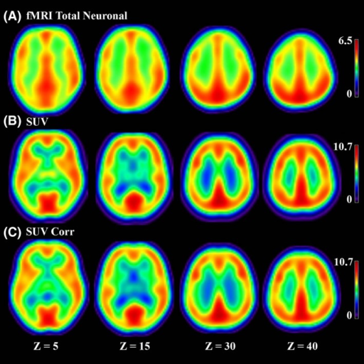 (A) fMRI total neuronal (B) SUV obtained from FDG‐PET without partial volume correction (C) SUV obtained from FDG‐PET after partial volume correction for our group of 16 healthy controls in four coronal slices.