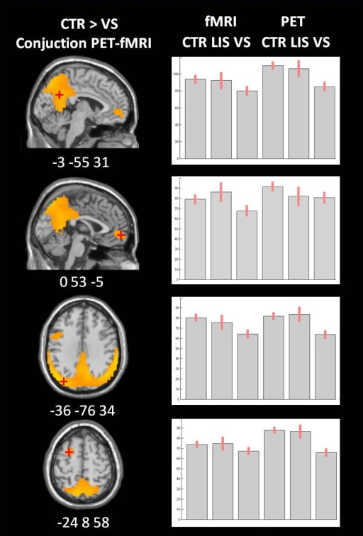 Voxel‐based analysis for the conjunction of FDG‐PET and fMRI total neuronal describing regions with higher metabolic activity in healthy controls compared to vegetative state/unresponsive wakefulness syndrome patients (in orange). The mean Z‐scores and 90% confidence interval for the connectivity in the precuneus, the medial frontal gyrus, the left lateral posterior parietal, and the left middle frontal gyrus are visualized for healthy controls, locked in syndrome patients (LIS) and vegetative state/unresponsive wakefulness syndrome patients (VS/UWS) for both fMRI total neuronal and FDG‐PET activity.
