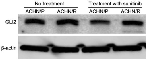 Western blot analysis evaluating the expression levels of GLI2 and β-actin in ACHN/P and ACHN/R treated with or without 5 µM sunitinib. ACHN/P, parental ACHN glioma cell line; ACHN/R, ACHN cells with acquired sunitinib resistance.
