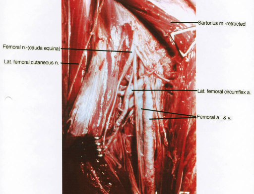 femoral nerve; cauda equina; lateral femoral cutaneous nerve; sartorius muscle; lateral femoral circumflex artery; femoral artery; femoral vein