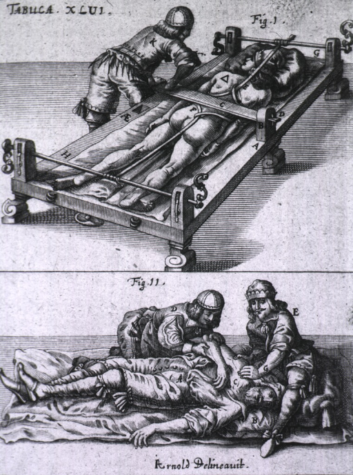 <p>Top illustration demonstrates the use of a luxation table to replace a dislocated limb.  Bottom illustration shows two physicians trying to reposition a dislocated arm on a patient who has fainted.</p>