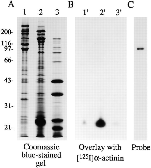 Demonstration of a direct interaction between CRP1  and [125I]α-actinin using a blot overlay assay. (A) Coomassie  blue–stained gel showing a 27–34 (lane 1), a 34–43 (lane 2), and a  43–61% (lane 3) ammonium sulfate precipitates from an avian  smooth muscle extract. Proteins from a parallel gel were transferred to nitrocellulose and the nitrocellulose strip was probed  with [125I]α-actinin. The resulting autoradiograph shown in B illustrates [125I]α-actinin binding to CRP1. (C) Autoradiograph  demonstrating the purity of the radioiodinated α-actinin probe.  The position of the molecular mass markers is indicated on the  left, in kD.
