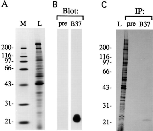 Characterization of an anti-peptide antibody (B37) directed against cCRP1. (A) A Coomassie blue–stained gel showing molecular mass markers M and total CEF proteins L. (B) A  parallel gel was transferred to nitrocellulose and probed with the  anti-CRP1 antibody B37 or its corresponding preimmune serum  pre. A single polypeptide of 23 kD is recognized by the antibody.  (C) Autoradiograph of a gel loaded with a CEF lysate prepared  from [35S]methionine-cysteine–labeled cells L, the proteins immunoprecipitated from this lysate with the polyclonal antibody  raised against CRP1 B37, and with its corresponding preimmune  serum pre. A single protein of 23 kD is specifically immunoprecipitated with the antibody against CRP1.