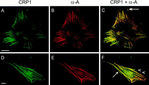 CRP1 and α-actinin are extensively codistributed in CEF and in smooth muscle cells. CEF cells (A–C) and smooth muscle  cells (D–F), prepared for confocal indirect immunofluorescence microscopy, were double-labeled with a polyclonal antibody raised  against CRP1 (A and D), and a monoclonal antibody raised against α-actinin (B and E). C and F are composite images of CRP1 (green)  and α-actinin (red) staining; the overlapping regions appear in yellow. Confocal microscopy reveals that CRP1 and α-actinin are extensively colocalized along the actin stress fibers. Both α-actinin and CRP1 are detected at the leading edges of the cells (arrows) and in the  adhesion plaques (arrowheads and data not shown). Bars, 30 μm.