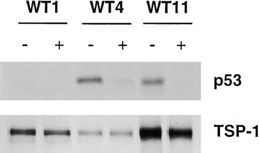 Immunoprecipitation of cellular p53 and TSP-1. Clones wt4 and wt11, derived from parental LN-Z308 cells, contain a wt TP53 gene under a tetracycline-regulated promoter (+, with tet; −, without tet). In the wt1 clone, p53 is not induced upon tetracycline removal and served as a negative control 13. The antibodies used were A6.1 (GIBCO BRL) for TSP-1 and G59-13 (PharMingen) for p53. Similar results were obtained with anti-TSP-1 antibody A4.1 (GIBCO BRL) (not shown).