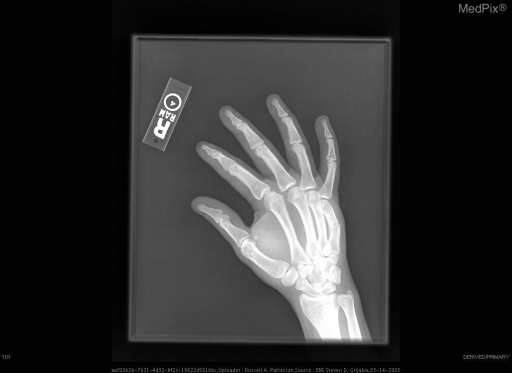 Oblique radiograph of the right hand shows a non-displaced mid-diaphyseal fracture of the 5th metacarpal.
