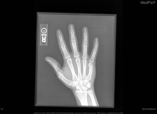 A-P radiograph of the right hand shows a non-displaced fracture of the mid-diaphysis of the 5th metacarpal.