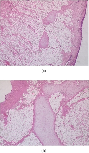 The images above are both at × 20 magnification. The view in Figure 3(a) shows a predominance of mature adipose tissue with fine bands of fibrosis and round islands of cartilage. The surface ciliated columnar epithelium is to be seen on the right of this image along with an island of cartilage. The chondrocytes lack cytological atypia or mitotic activity. Figure 3(b) shows an island of cartilage at higher power.