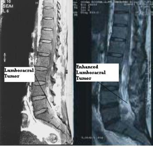 spine diagram bones an mri of the lumbosacral spine (left) showed an extrad ... mri spine diagram