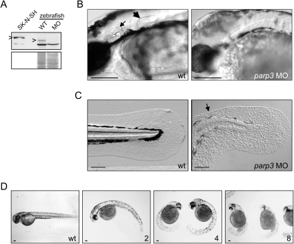 "Developmental perturbations in zebrafish embryos with impaired parp3 expression.A. Immunoblot analysis (upper panel) of zebrafish Parp3 in wild type (WT) and parp3 morphants (MO) using an antibody raised against human PARP3. A whole cell extract of human SK-N-SH cells is shown as a control. The protein bands corresponding to PARP3 are indicated by "">"". The faster migrating band corresponds to a non-related protein that cross-reacts with the antibody. The Western blot membrane was stained with Ponceau S as a protein loading control (lower panel). B. Enlarged lateral views of the head regions of wild type and parp3 morphants injected with 4 ng MO1. The inner ears (small arrow) and the pectoral fins (large arrow) in the wt embryos are not formed in the parp3 morphants. C. Enlarged lateral views of the tail of wild type and parp3 morphants injected with 4 ng MO1. The median fin fold (arrow) is less developed in the morphants and has a more granular aspect. Effects are more pronounced on the dorsal side (arrow). D. Zebrafish embryos 48hrs after injection of increasing amounts of the parp3-specific morpholino oligonucleotide MO1 at the one-cell stage (ng amounts indicated in the lower right corner). The short length of morphant embryos, their curved tail and their reduced pigmentation is increasingly severe with increasing amounts of injected MO1. Lateral views with anterior to the right and dorsal to the top. Scale bars represent 10 µm."