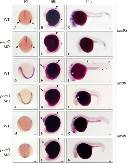 Impaired expression of sox9a, dlx3b and dlx4b in parp3 morphants.Zebrafish embryos were untreated (WT) or were injected with 4 ng parp3 MO1. Gene expression was detected by in situ hybridization. A–F. The expression of sox9a is drastically reduced in the otic placodes (small arrows) at 10 hpf and in the otic vesicles (arrowheads) at 16 hpf. Expression of sox9a in somite cells (small arrows in B and E) appears diffuse in parp3 morphants. Expression of sox9a is almost completely abolished in the head region at 24 hpf (C, F). Expressions of dlx3b (G–L) and dlx4b (M–R) are minimally affected by parp3 MO in ectodermal cells at 10 hpf (G, J, M, P) but are significantly reduced in the otic vesicles (arrowheads), olfactory placodes (large arrows) and branchial arches (white arrows) of parp3 morphants at 16 hpf (H, K, N, Q) and 24 hpf (I, L, O, R). The expression of dlx3b and dlx4b is abolished in the median fin fold of 24 hpf parp3 morphant embryos (small arrows in I). Dorsal views of embryos with anterior to the bottom in A, D, G, J, M, P and lateral views with anterior to the left, dorsal to the top, in B, C, E, F, H, I, K, L, N, O, Q and R. Scale bars represent 10 µm.