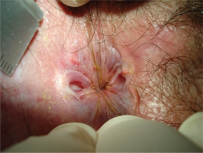 Looking at anal verge of the same patient after strong eversion of the anal skin two chronic anal fissures (posterior and anterior) appear surrounded by a pale skin covered with partially bleeding superficial longitudinal splits.