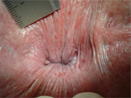 But if the anal skin was everted by use of the finger tips of both hands, numerous red superficial round and longitudinal gaps within the squamous epithelium proximal the dentate line are found (pruritus ani/anitis/perianal dermatitis).