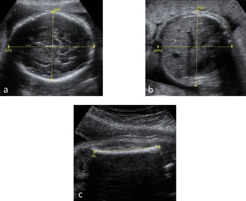 Ultrasound images demonstrating the transverse section of the fetal head (A), abdomen (B) and femur length (C). Markers are placed depicting measurements of the biparietal (BPD), occipitofrontal (OFD), antero-posterior (APAD) and transverse abdominal (TAD) diameters and femur diaphysis length (FL).