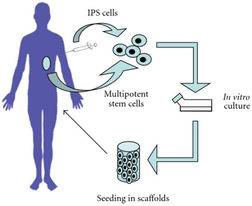 Basic scheme of tissue engineering. A biopsy is carried out to extract cells from the patient. These can be endogenous organ-specific multipotent SCs, or alternatively they can be adult differentiated somatic cells, reprogrammed to IPS cells. SCs are isolated, expanded and differentiated to the cell type of interest in an appropriate culture medium, seeded in a scaffold, and cultured in vitro. At this point, the new tissue is implanted in the patient.