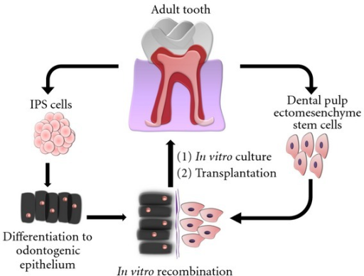 Theoretical design of a dental engineering process involving IPS cells. Tooth tissues already present well-characterized populations of ectomesenchymal SCs, that can generate de novo a complete dentin-pulp complex and periodontium. The hard enamel tissue constituting the remaining part of the tooth must be formed by dental epithelial cells. In this context, autogenic IPS cells could be used as a source of new dental epithelium, to be recombined with ectomesenchymal cells, thus creating a bioengineered tooth germ that can be cultured in vitro and transplanted to the jawbone/maxillary bone of a recipient host to form a fully functional tooth. Almost all IPS-derived epithelial cells will disappear after tooth eruption, as a consequence of normal dental development.