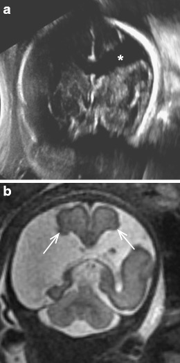 Open-lip schizencephaly. a Coronal ultrasound through the atria at 30 weeks' gestation with non-visualisation of the CSP (not shown) demonstrates a supratentorial cyst (asterisk), with a differential diagnosis of porencephaly versus schizencephaly. b Coronal T2-weighted MRI at 32 weeks' gestation demonstrates absence of the CSP and bilateral frontoparietal clefts lined by grey matter (arrow) extending from the pial surface to the lateral ventricle consistent with open-lip schizencephaly