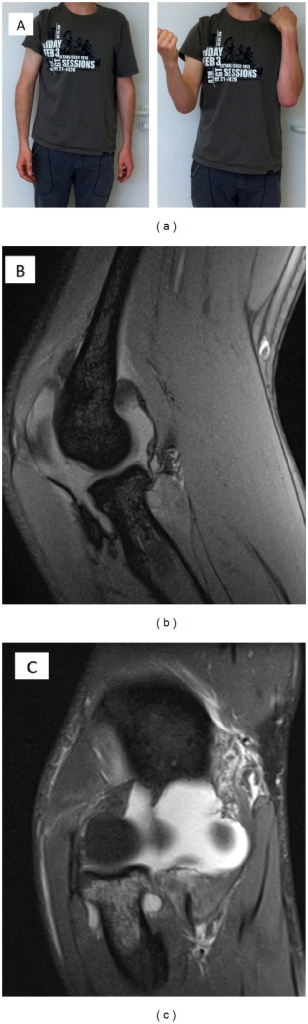(a) Isolated rupture of the anterior medial ulnar collateral ligament (aMUCL) by valgus stress trauma. The patient was typically suffering from a limited range of motion in flexion. Full range of motion with a stable elbow was restored with conservative treatment 10 weeks after trauma. (b) MRI proofed isolated aMUCL rupture of the photographed patient. The sagittal plane illustrated an inflammatory reaction. (c) The frontal plane demonstrated the rupture of the MUCL complex from its proximal insertion on the medial epicondyle humeri.