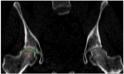 The radiological angles of the hip include the center-edge (CE) angle, in red, which evaluates the lateral coverage of the femoral head by the acetabulum, and the acetabular index (AC) angle, in green, which represents the obliqueness of the acetabular roof.