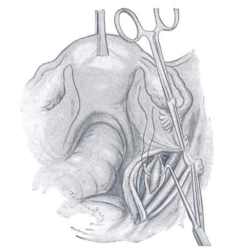 Technique of ligation of the right hypogastric artery (after Proust and Maurer). The Deschamps needle is introduced between the hypogastric artery and the adventitia of the blood vessel, which was first incised; this way the vein is protected