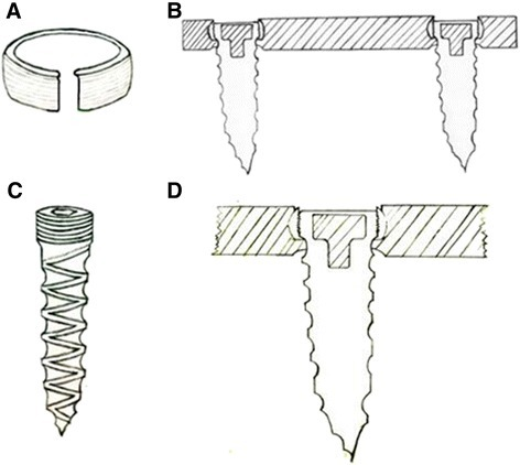 Screw and ring and the lateral view of the self-locking plate system. (A, C) The polyethylene ring that is fitted into the screw hole and the screw. (B, D) A lateral view of the self-locking plate system, which employs a polyethylene ring to lock the screw into the plate.
