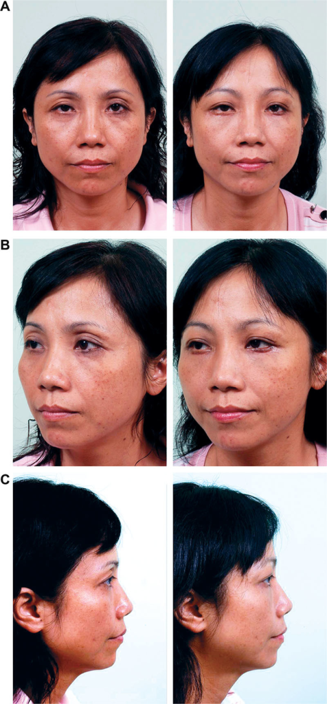 A 47-year-old woman underwent MAFT for the hollowness of her upper eyelids with multiple folds. One-time MAFT was performed at 1.8 mL/2.0 mL (right/left). A, Preoperative frontal view (left) and at 6 months follow-up (right). B, Preoperative left profile view (left) and at the 6-month postoperative follow-up (right). C, Preoperative right lateral view (left) and at 6-month postoperative follow-up (right).