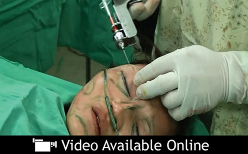 "See video, Supplemental Digital Content 1, which displays the microautologous fat transplantation for sunken upper eyelids. This video is available in the ""Related Videos"" section of the full-text article at http://www.PRSGo.com and is available at http://links.lww.com/PRSGO/A55."