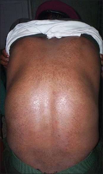 Desert sweat dermatitis involving entire back of a patient