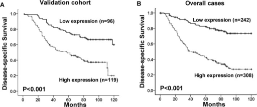 The association between ULK1 expression and NPC patients' survival.Kaplan-Meier survival analysis of ULK1 expression for disease-specific survival in the validation cohort (A) and in the overall cases (B) (log-rank test).